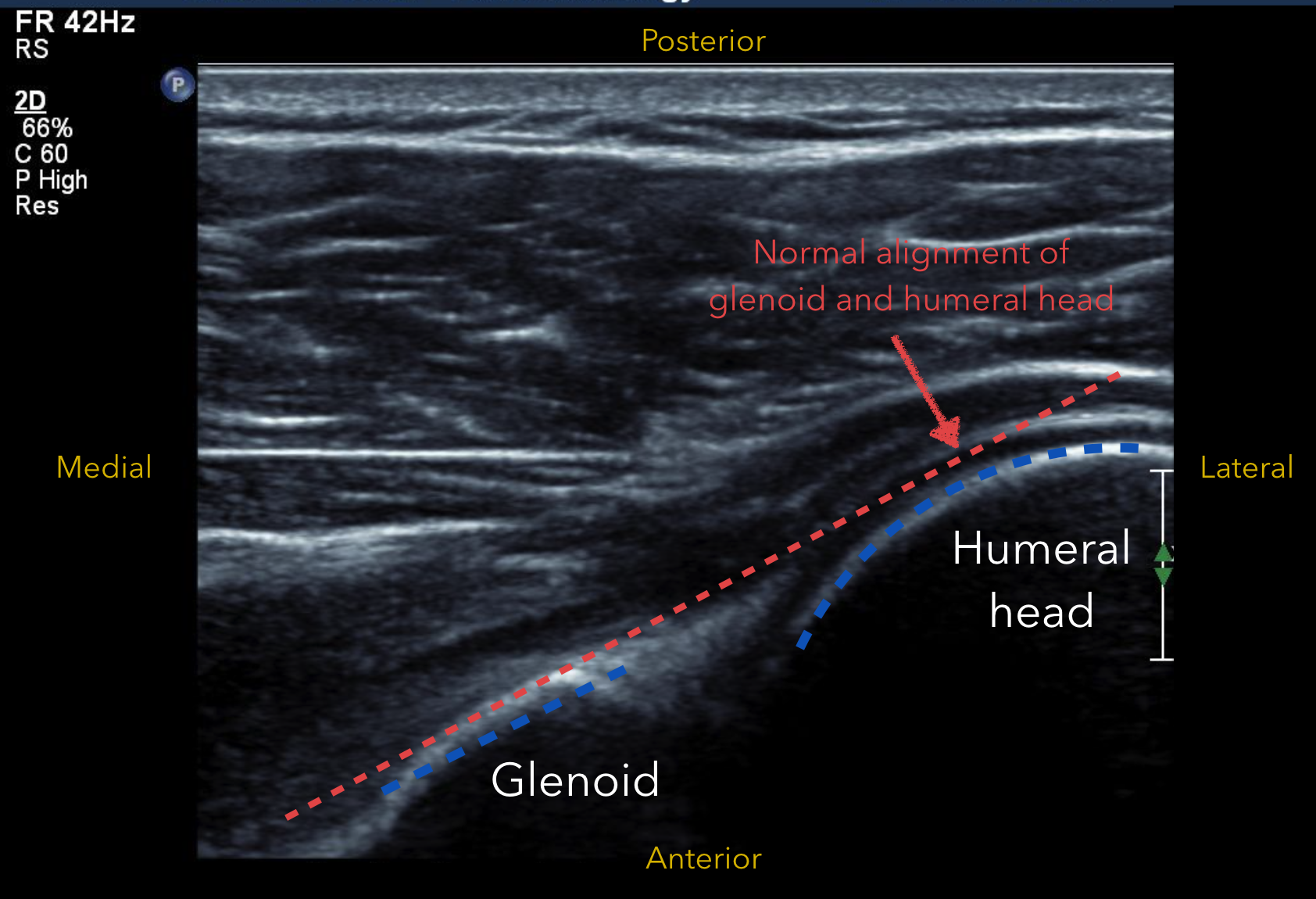 Fetal head anatomy ultrasound