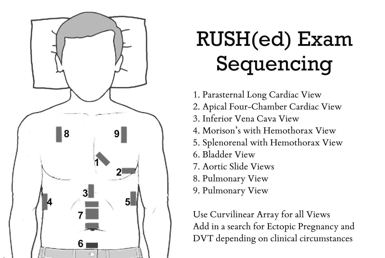 Image courtesy of emcrit.org/rush-exam/